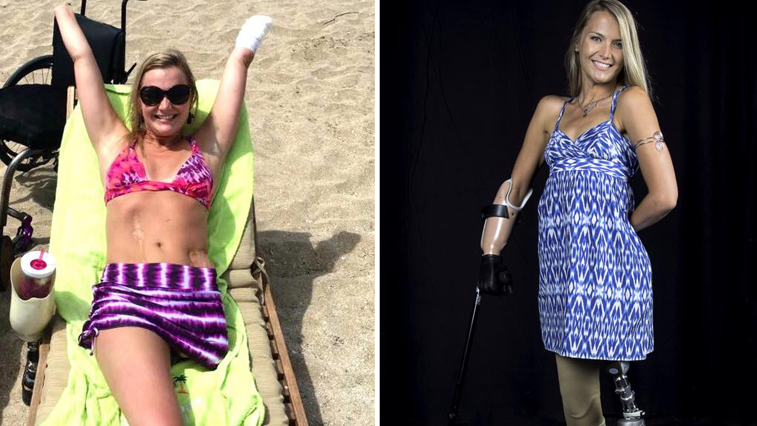 Action On Gun Violence >> Aimee Copeland, flesh-eating bacteria survivor, shares inspiring new photo, message - TODAY.com