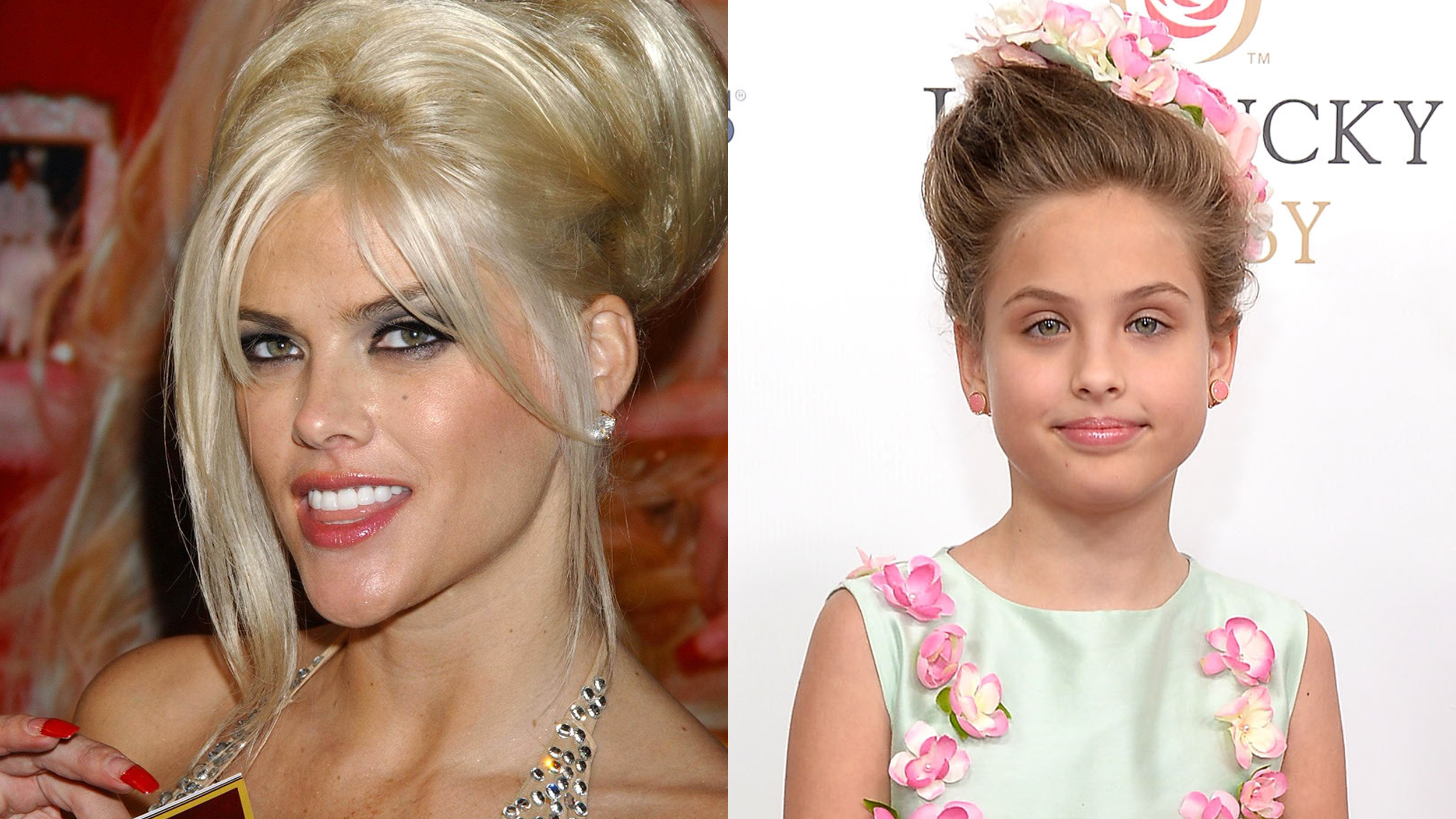 Anna Nicole Smith Before And After Plastic Surgery ...