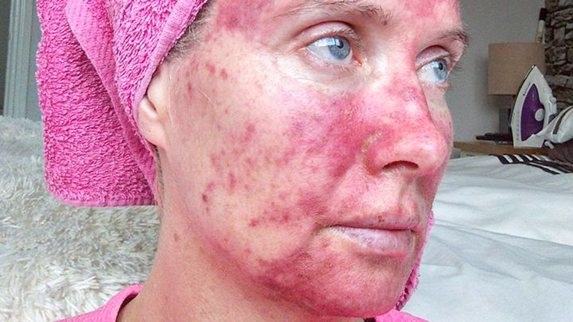 Actinic keratosis: Woman shows treatment with painful photos