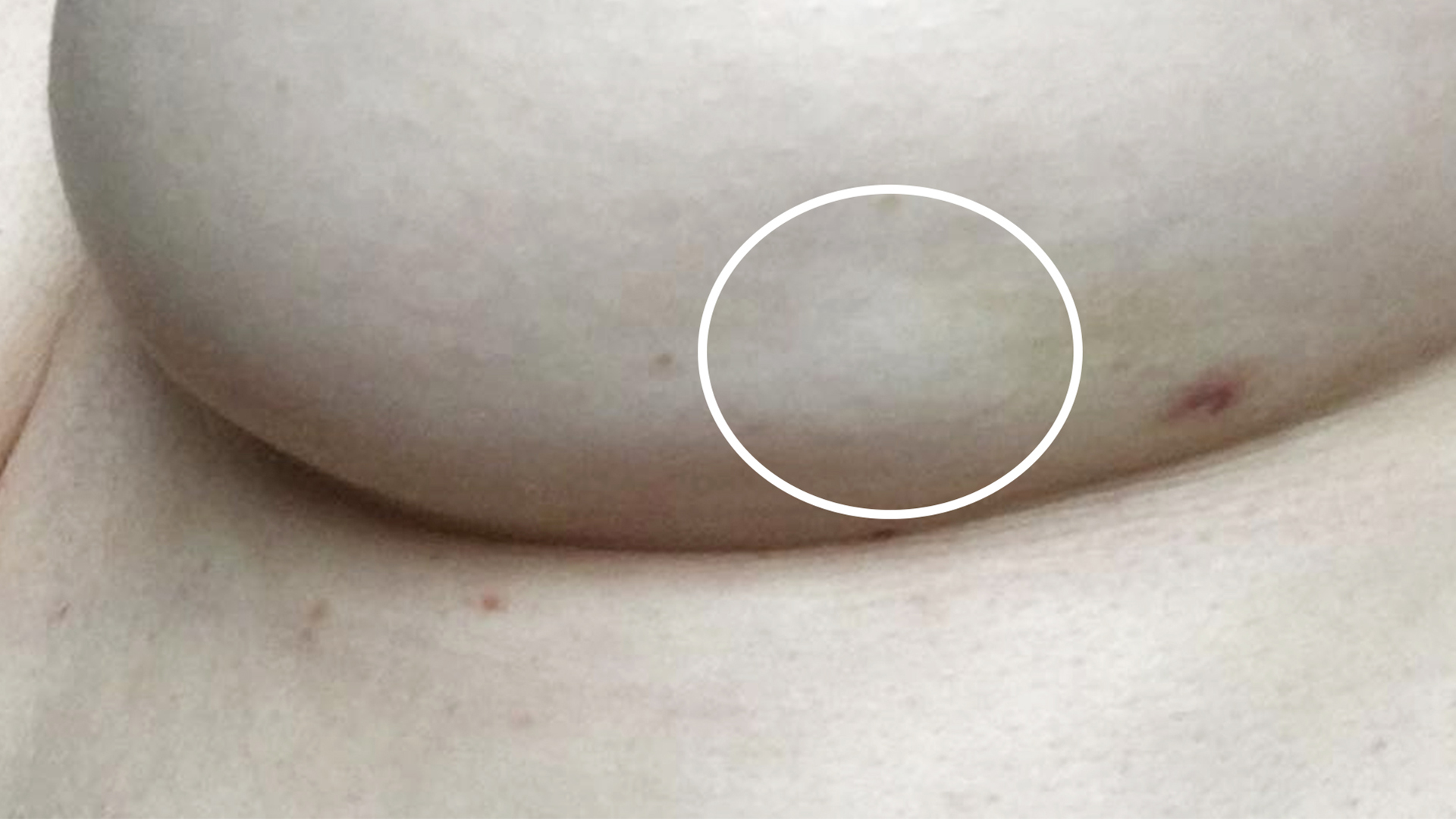 'Blink and you'd miss it': Woman shares photo of breast cancer symptom