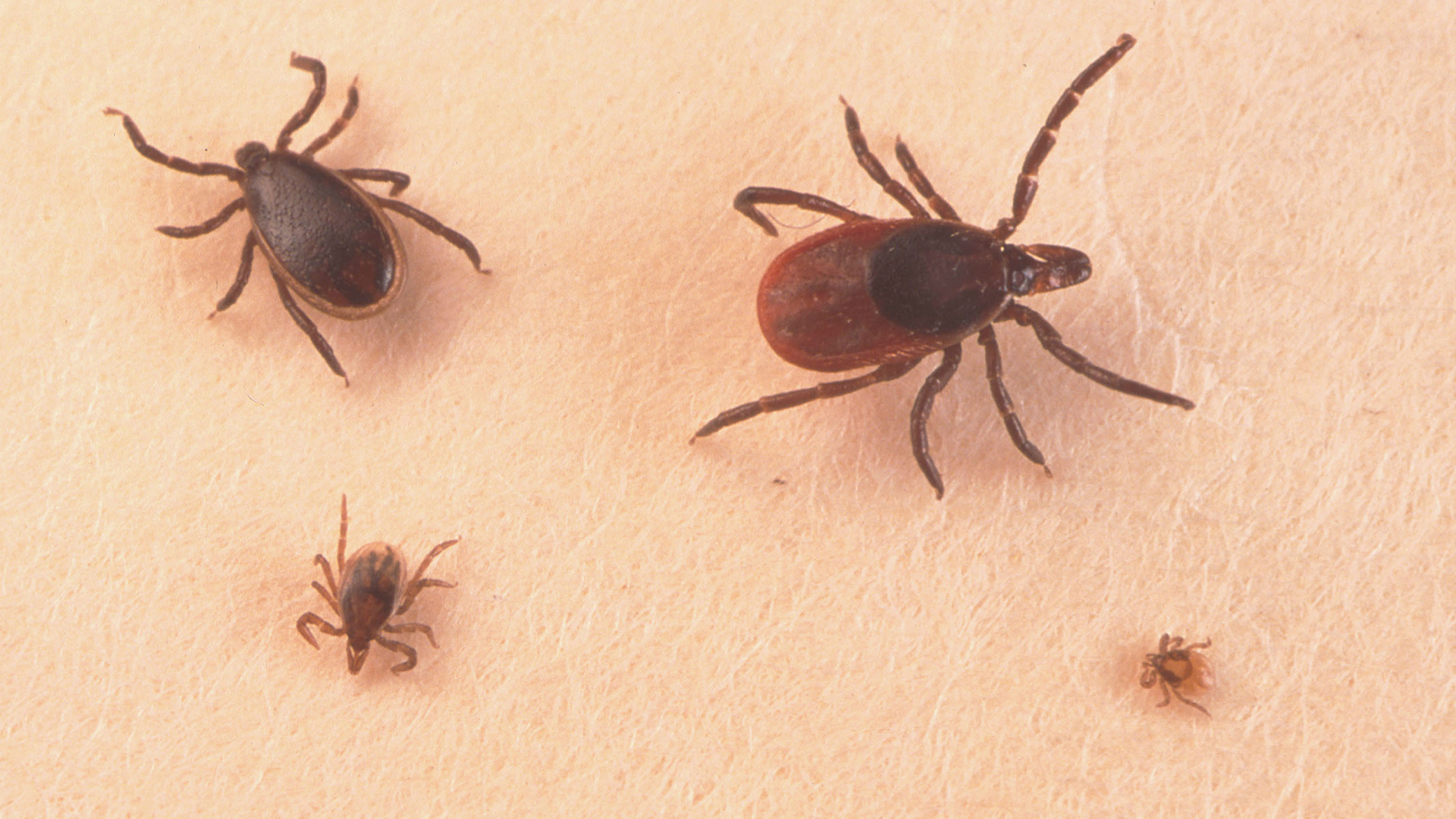 Hope for people with chronic Lyme? Scientists rush to develop new tests