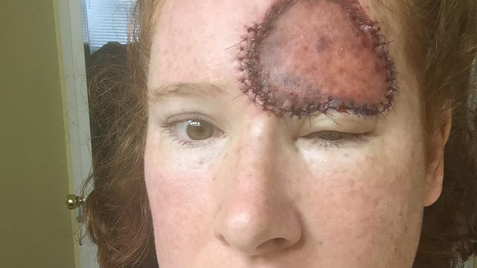 Skin Cancer Mom Shares Harrowing Recovery From Melanoma