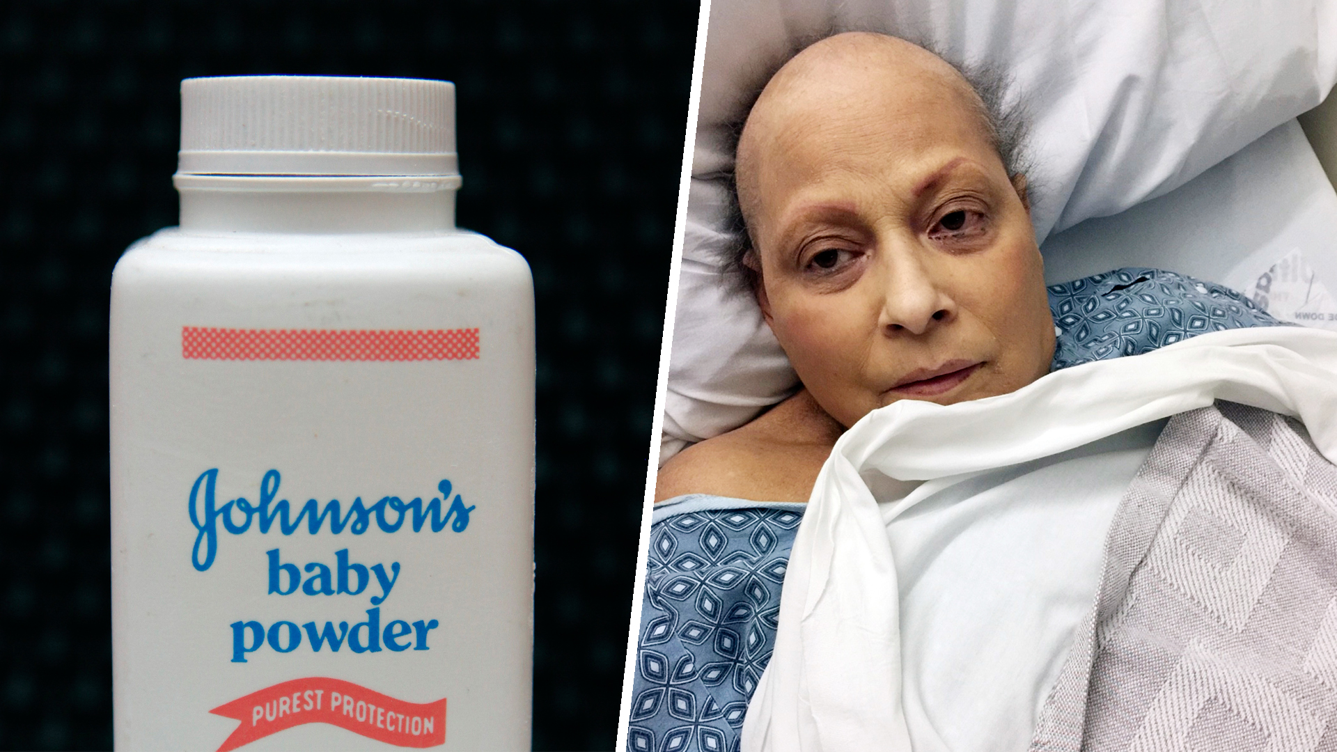 Does Johnson Johnson Baby Powder Cause Cancer