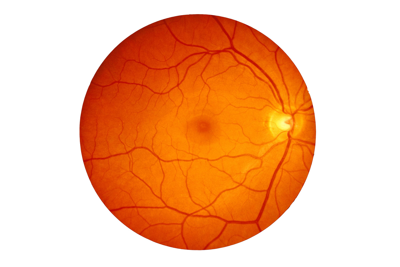 Image: Retina