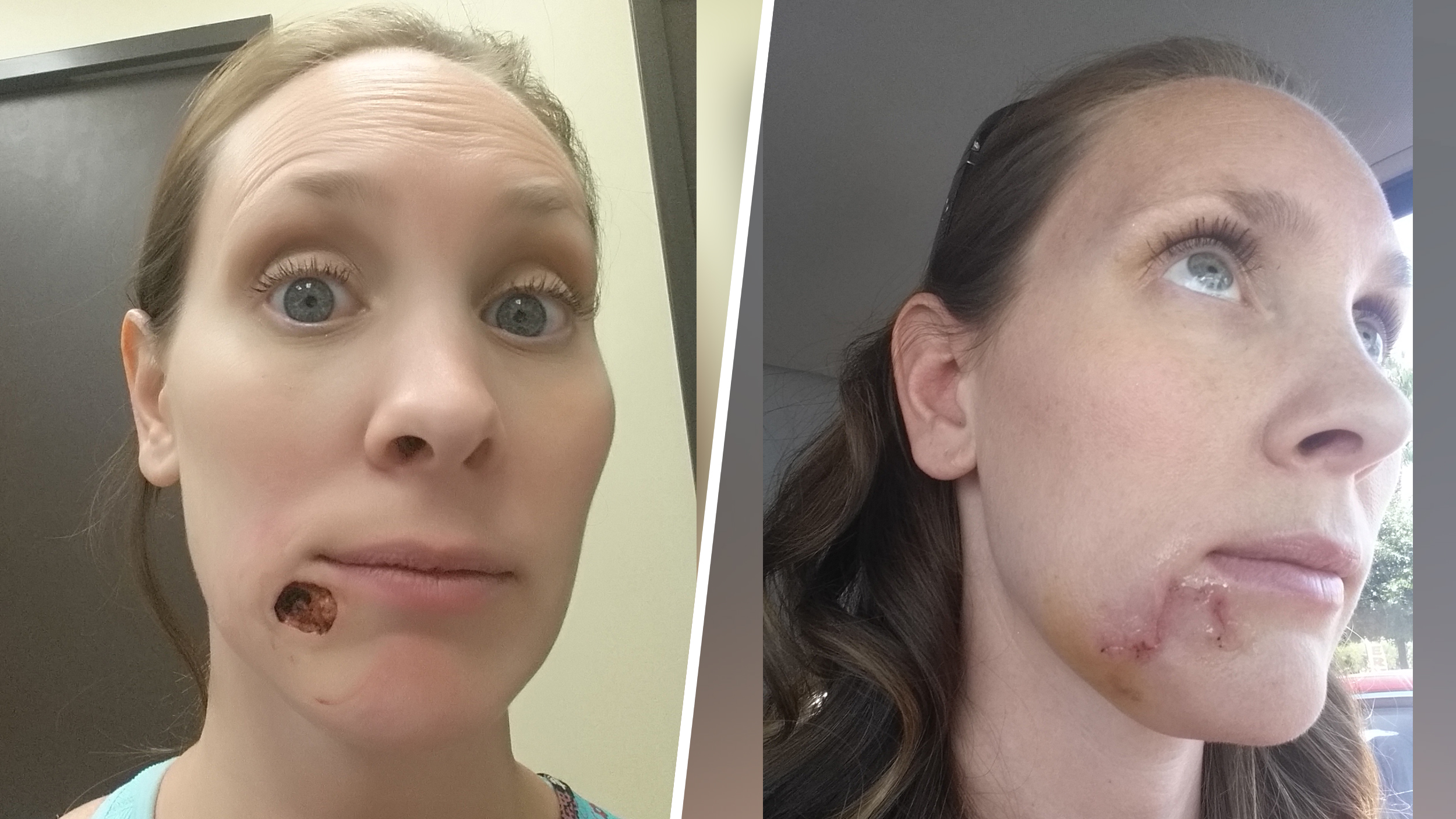 Woman shares story of 'pimple' that turned out to be