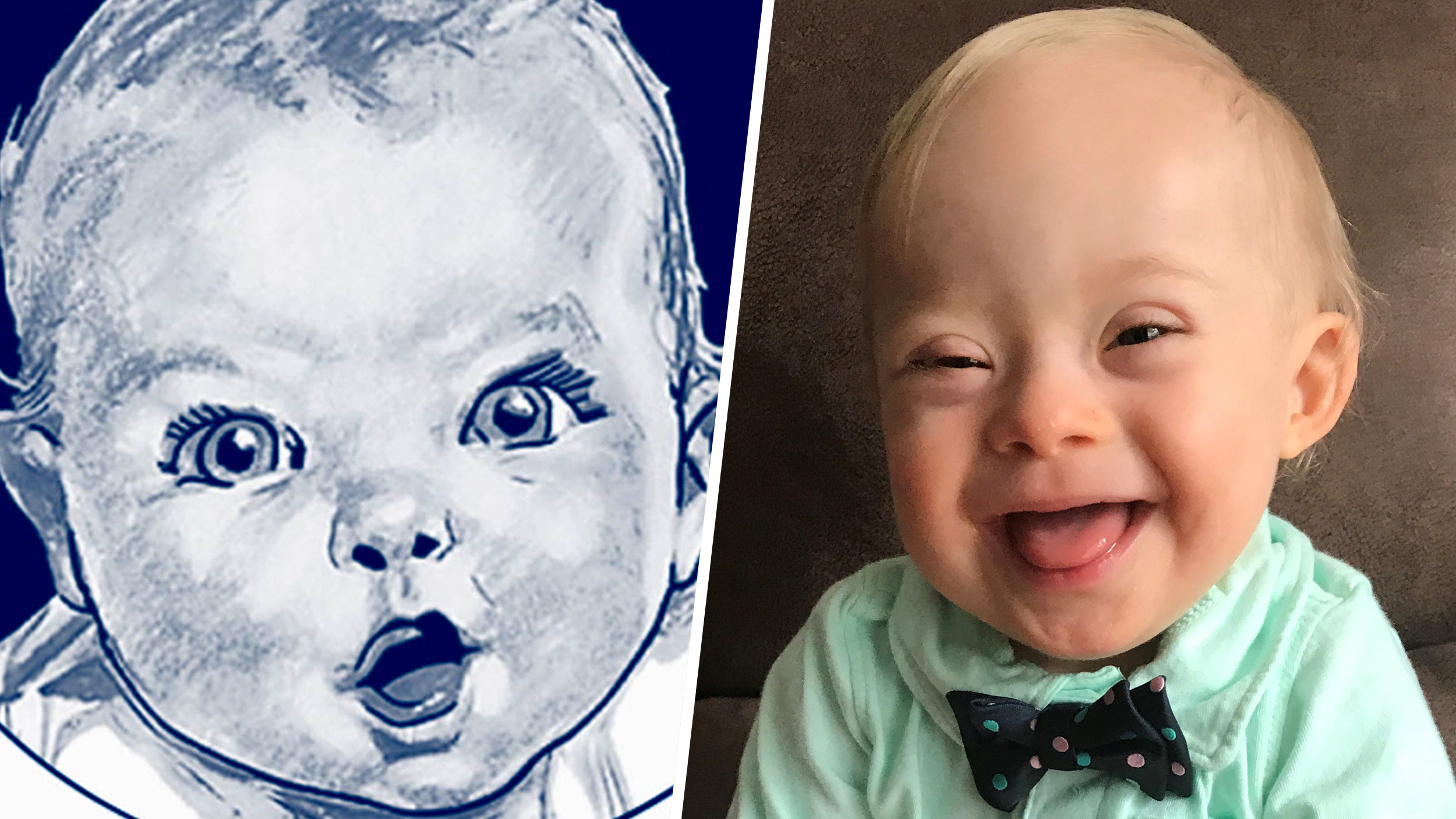 2018 gerber baby is first gerber baby with down syndrome - today