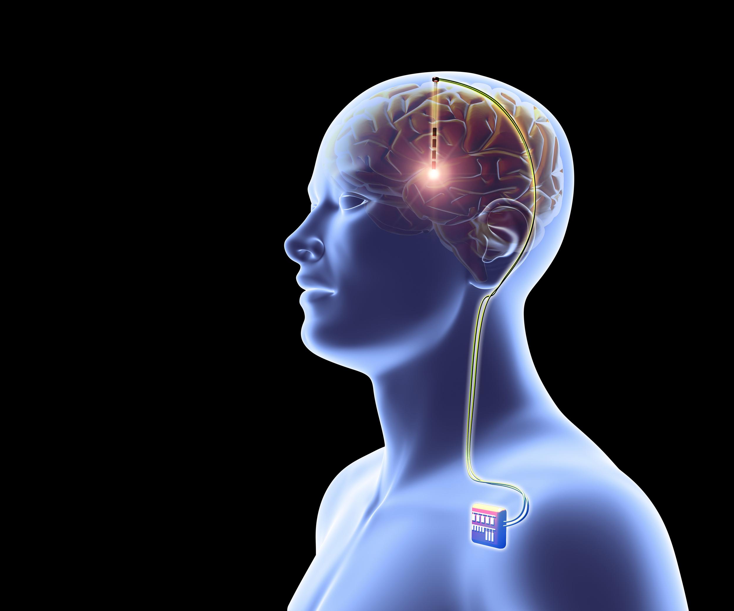 brain wiring test scoring wiring solutions rh rausco com Wiring the Brain of Personality Disorder Female Brain Wiring