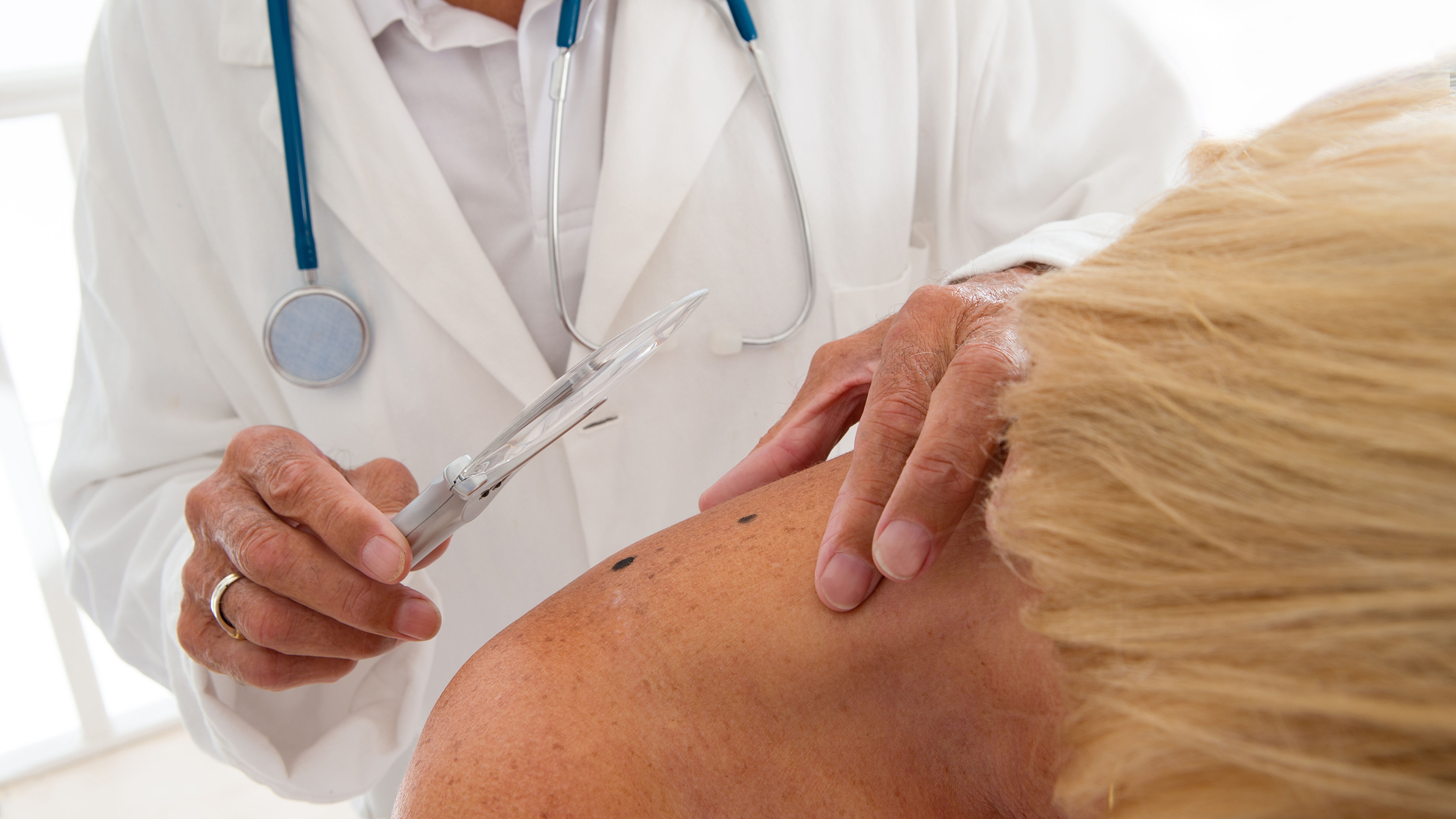 Doctors find out why skin cancer is incurable