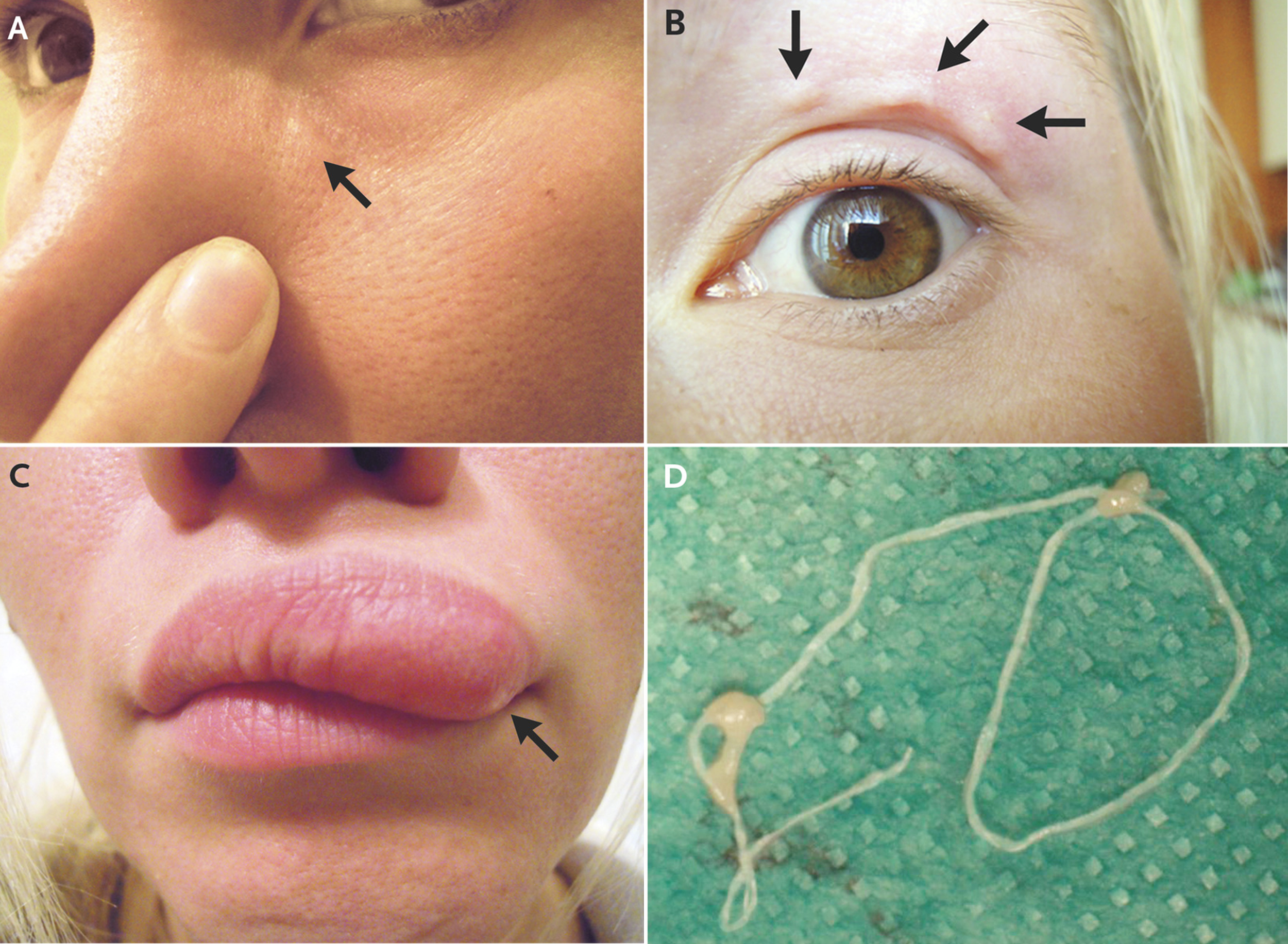 Moving lump in woman's face was a worm