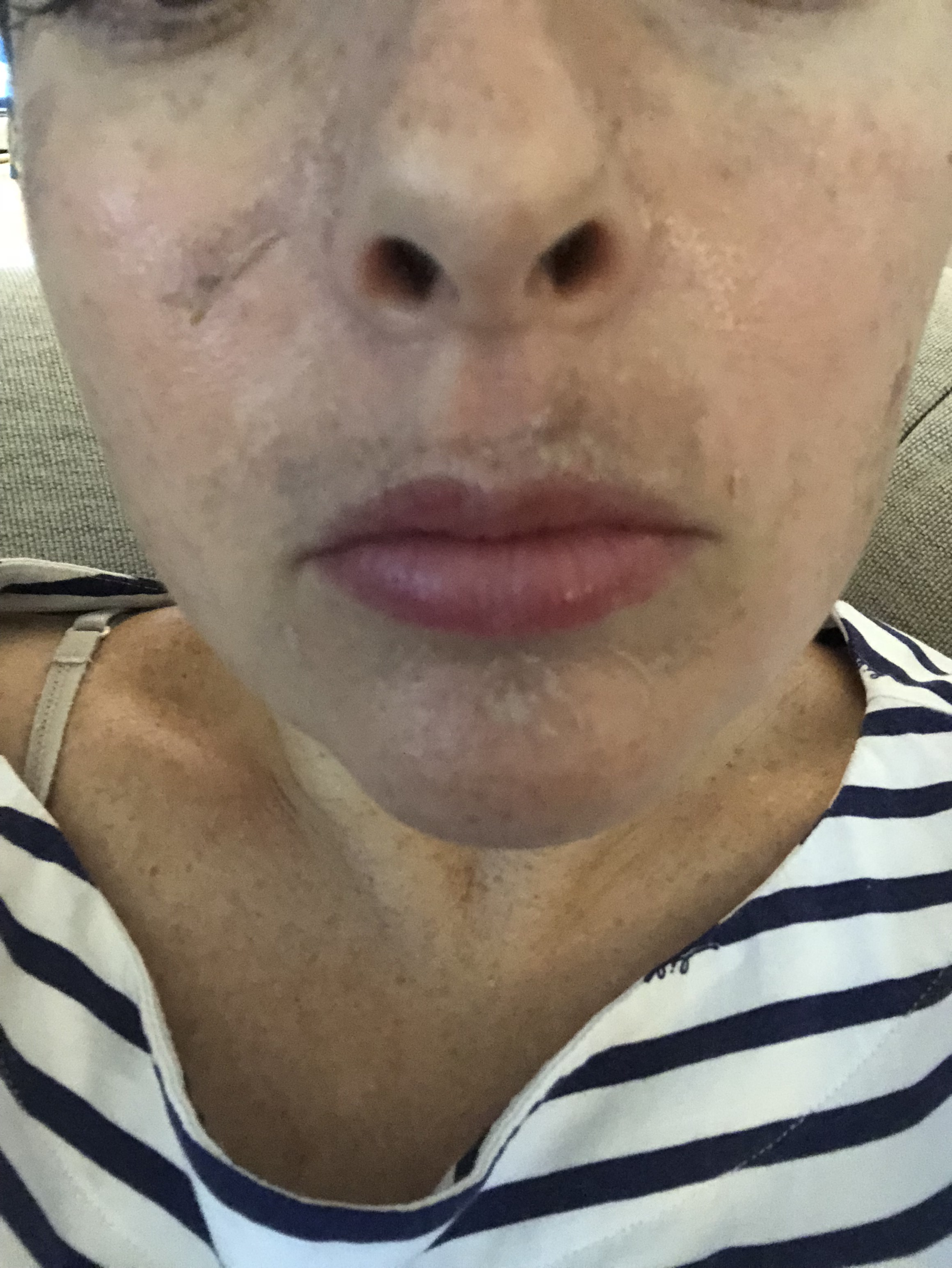 What Is Melasma How To Treat Skin Discoloration