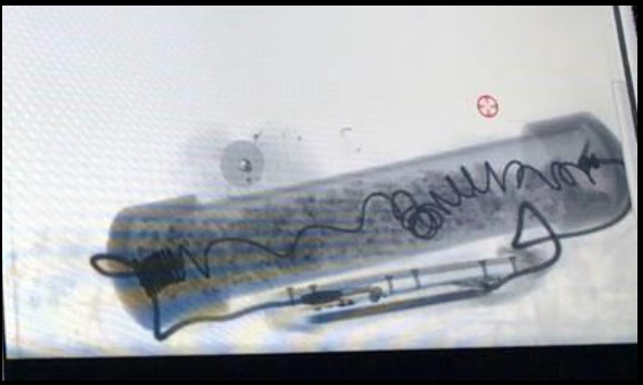 IMAGE: X-ray image of pipe bomb