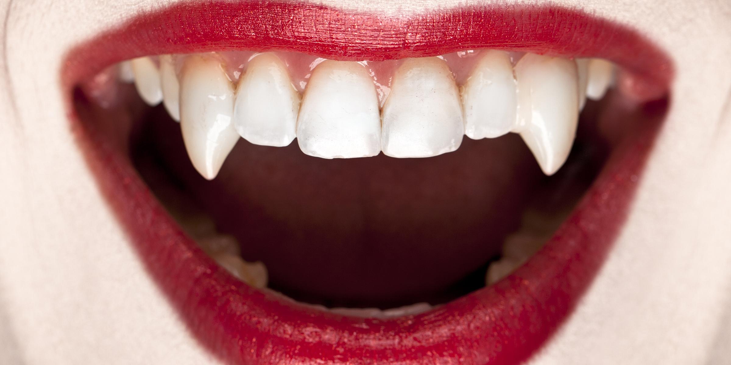 Woman's Halloween teeth get stuck, become dental emergency