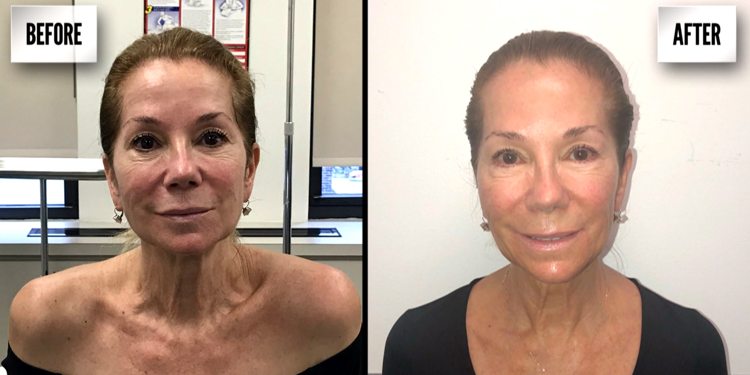 What is Ultherapy? Cost and review of the mini lift without surgery
