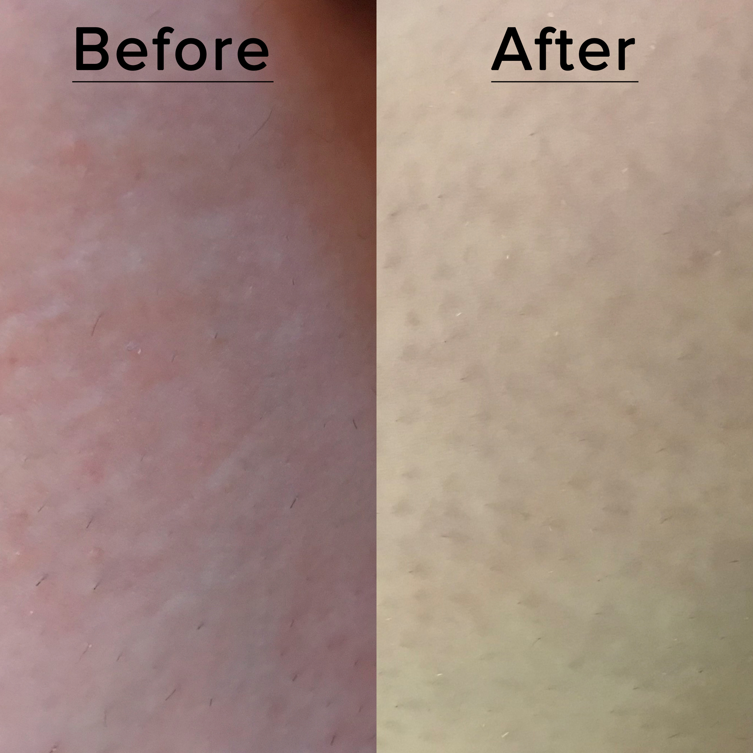 Oil before after and review bio 18 Ways