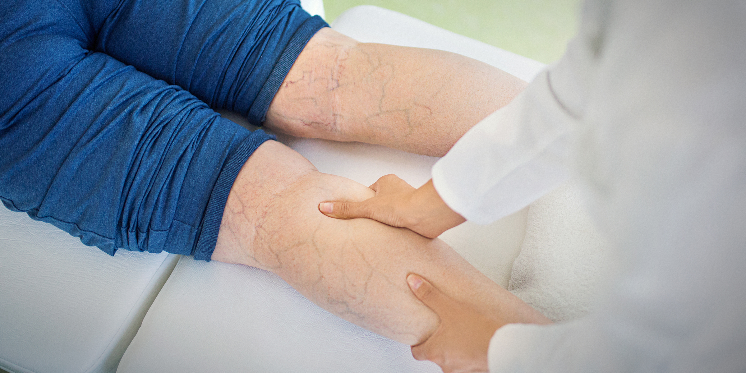 a1b2712458 Varicose veins: Remedies and treatment