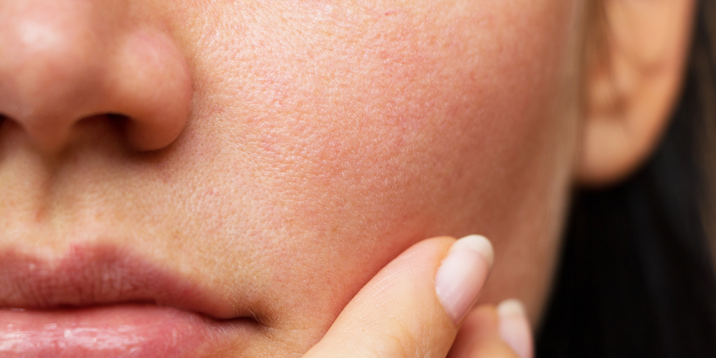 The 5 different skin types: Which type of skin do you have?