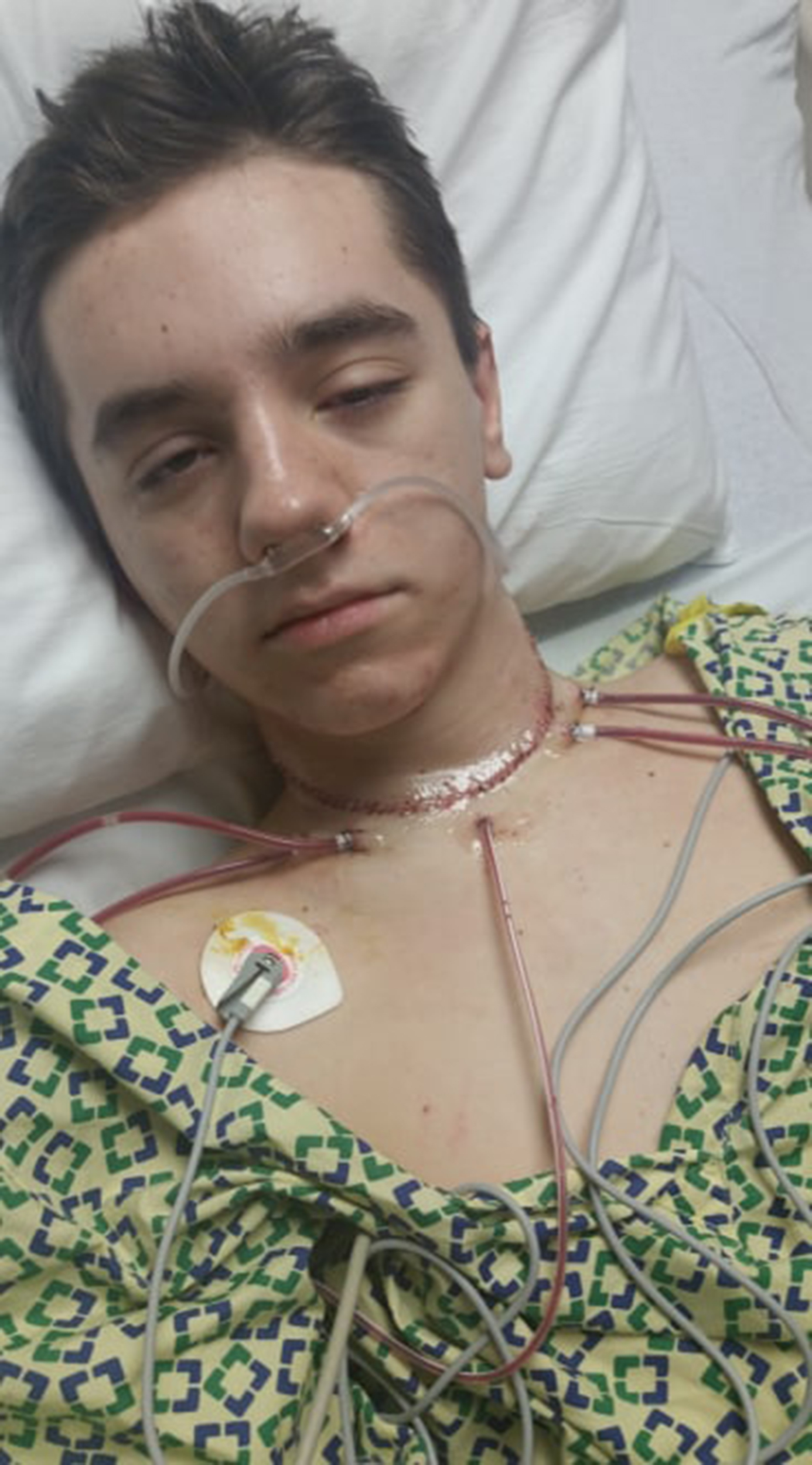 Teen With Stage 4 Medullary Thyroid Cancer Beats Odds To Graduate