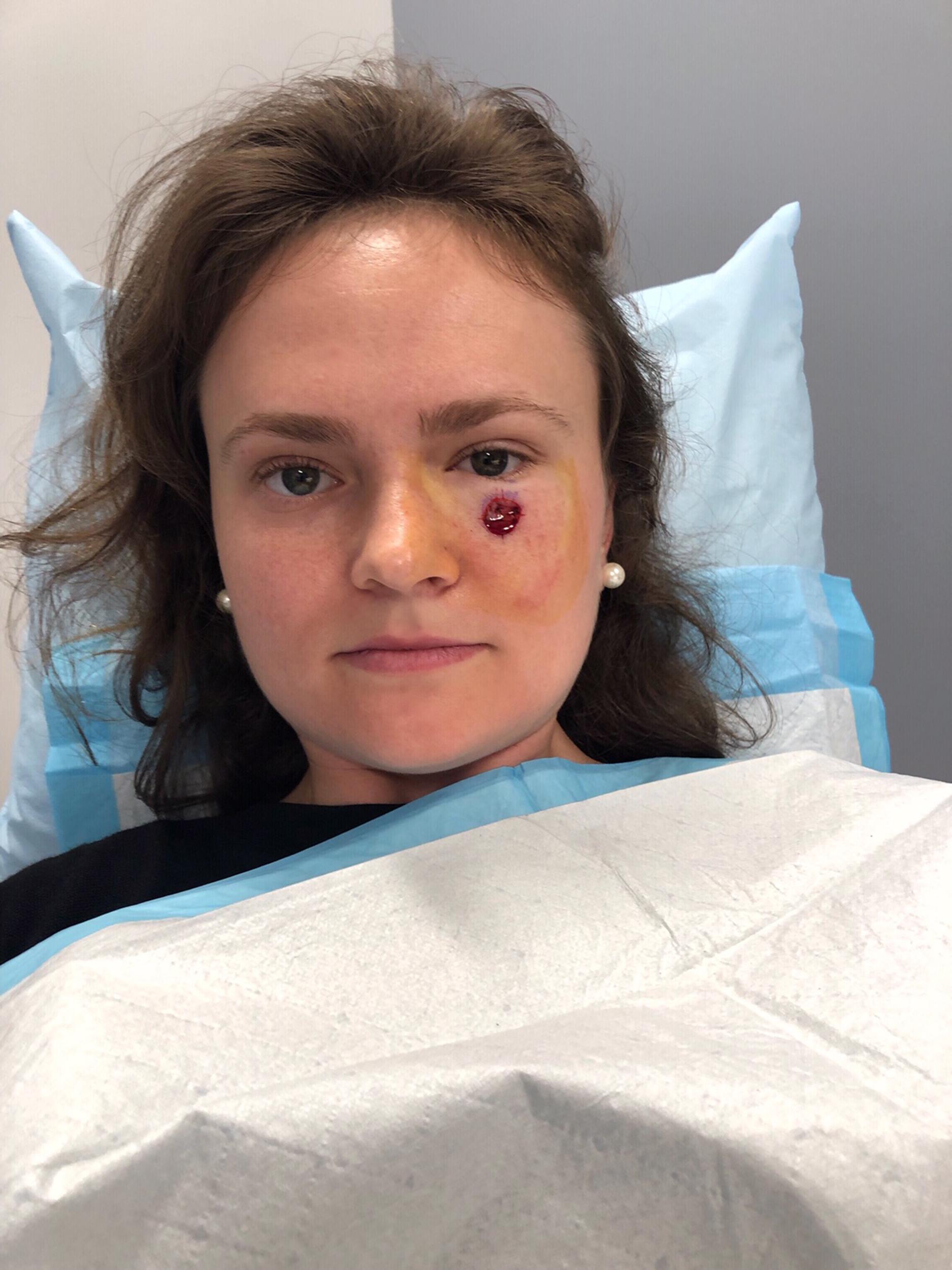 Skin Cancer Woman Discovers Basal Cell Carcinoma Near Eye