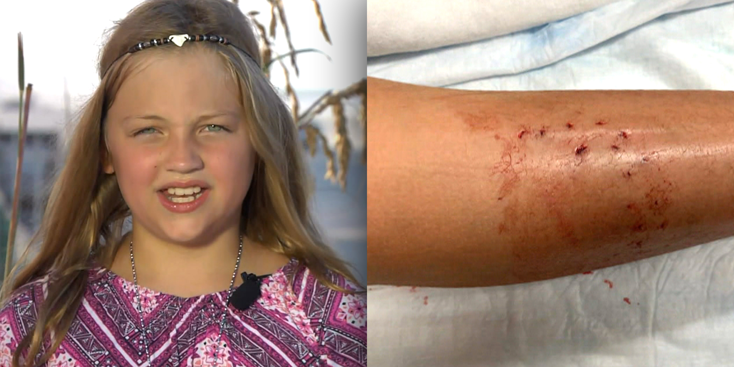 9-year-old girl details shark attacked off New Smyrna Beach
