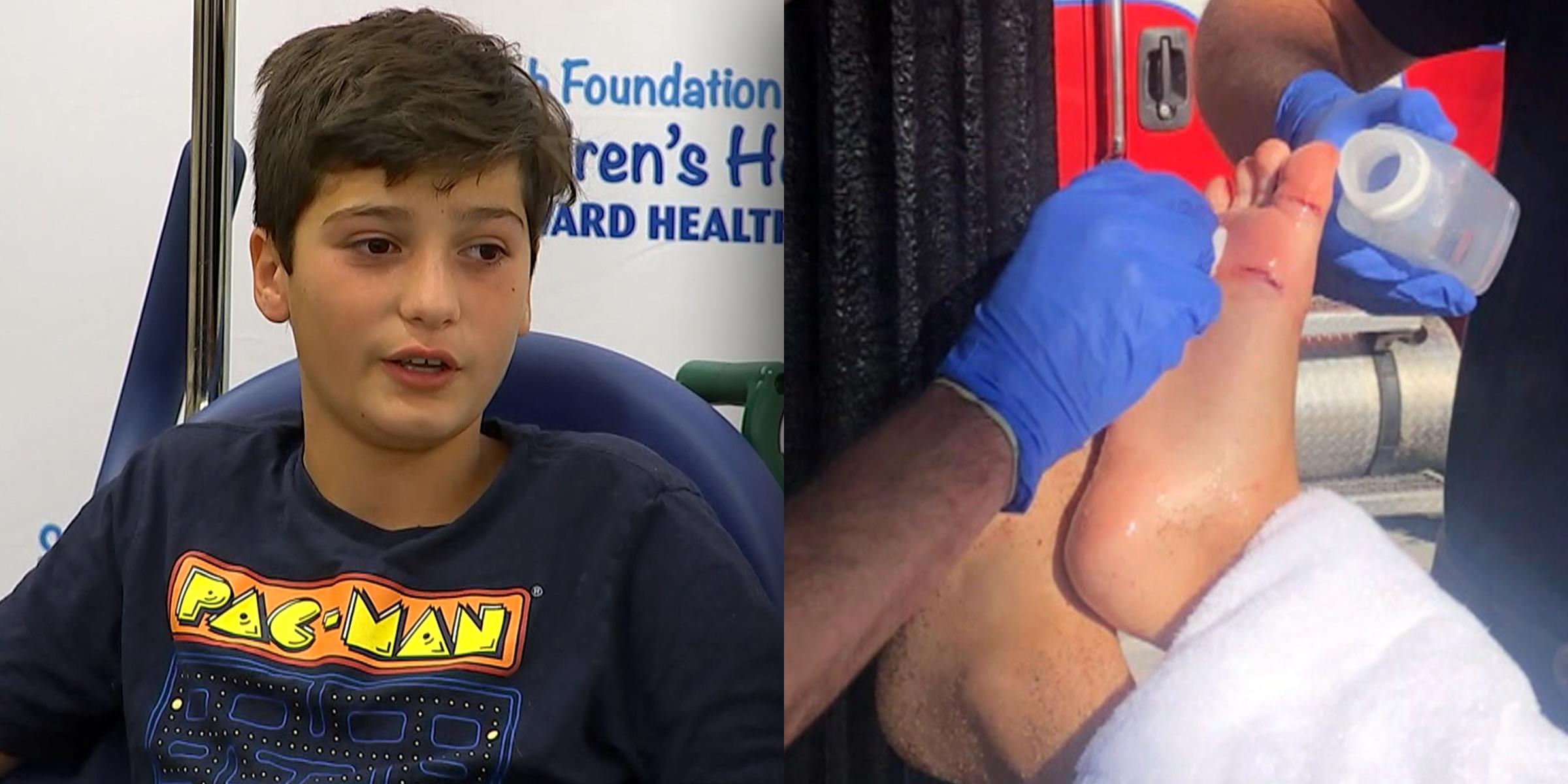 Canadian boy, 11, bitten by shark in Fort Lauderdale