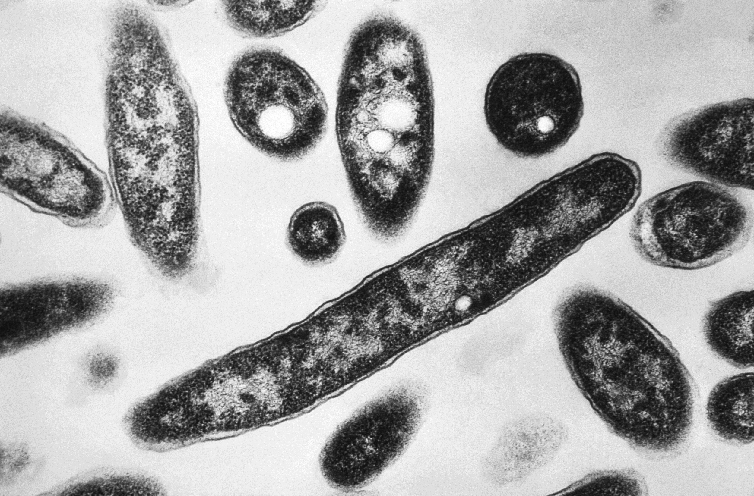 Legionnaires' outbreak that has sickened 100 could be tied to hot tubs at N.C. state fair