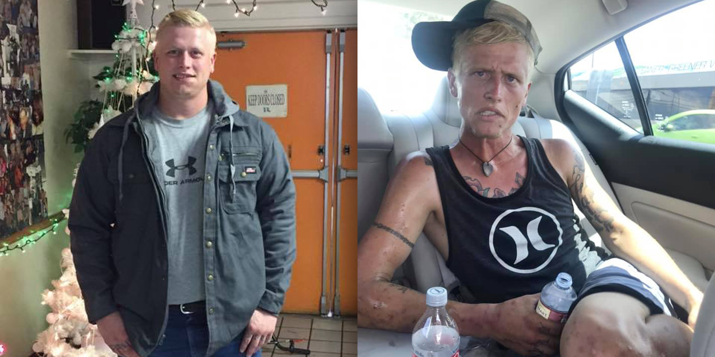 'The face of heroin': Mom shares haunting before and after photos of her addicted son