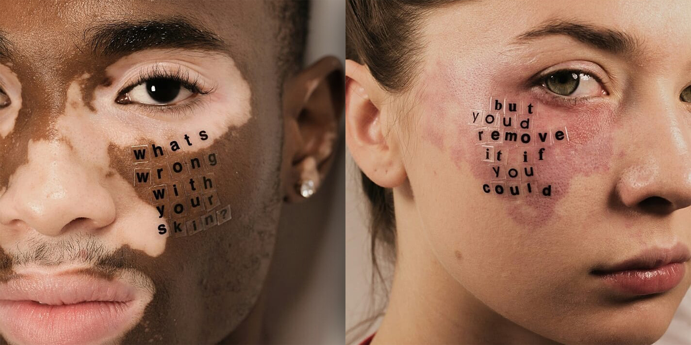 Models With Skin Conditions Answer Hurtful Questions In Powerful Portrait Series