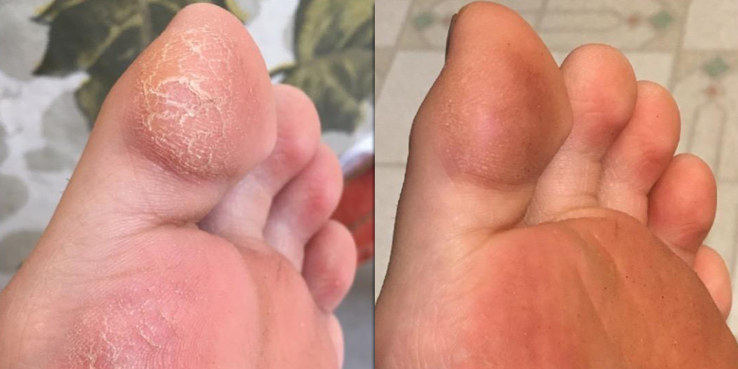 foot cream for dry, cracked skin