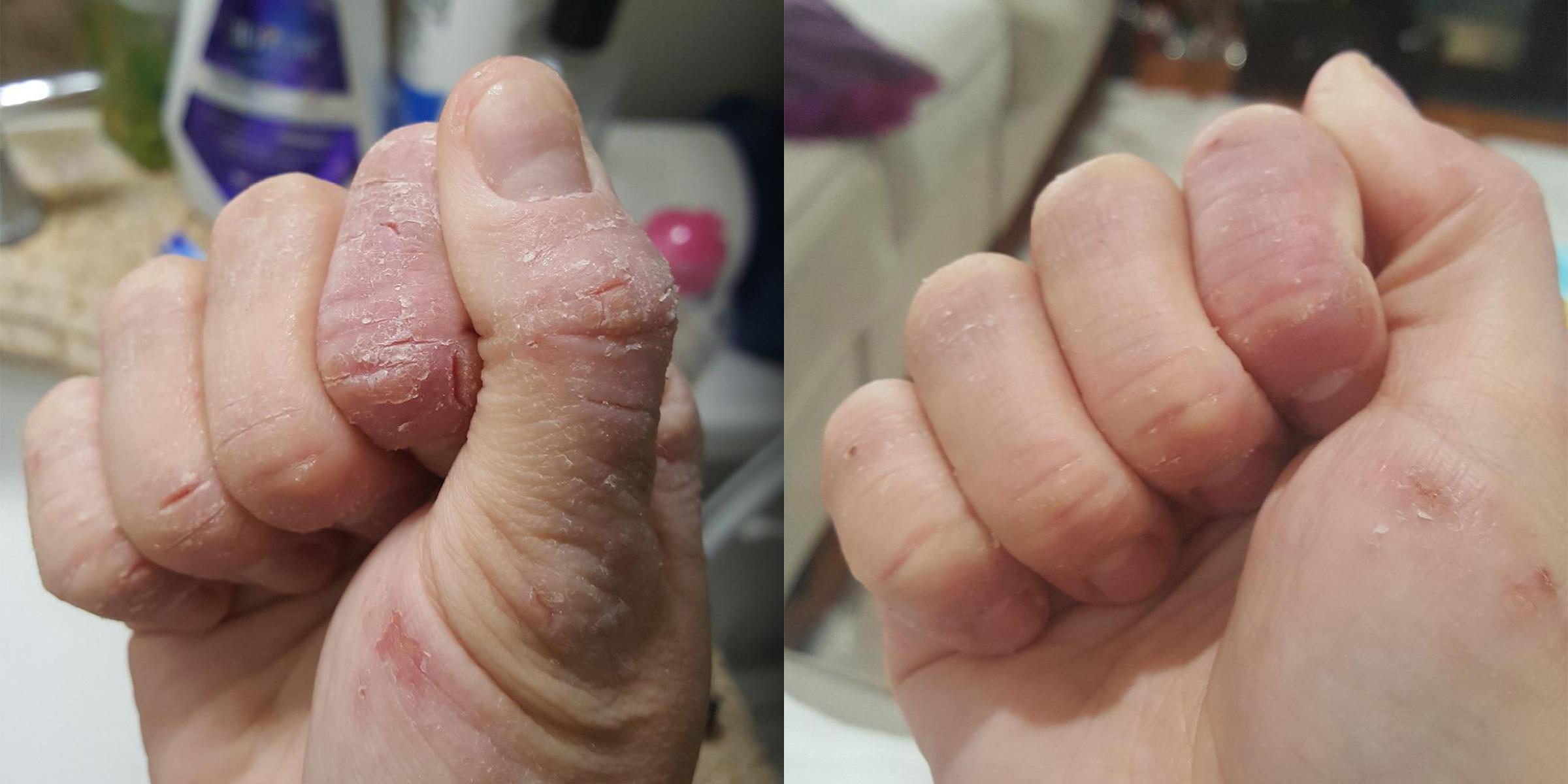 cracked skin on hands