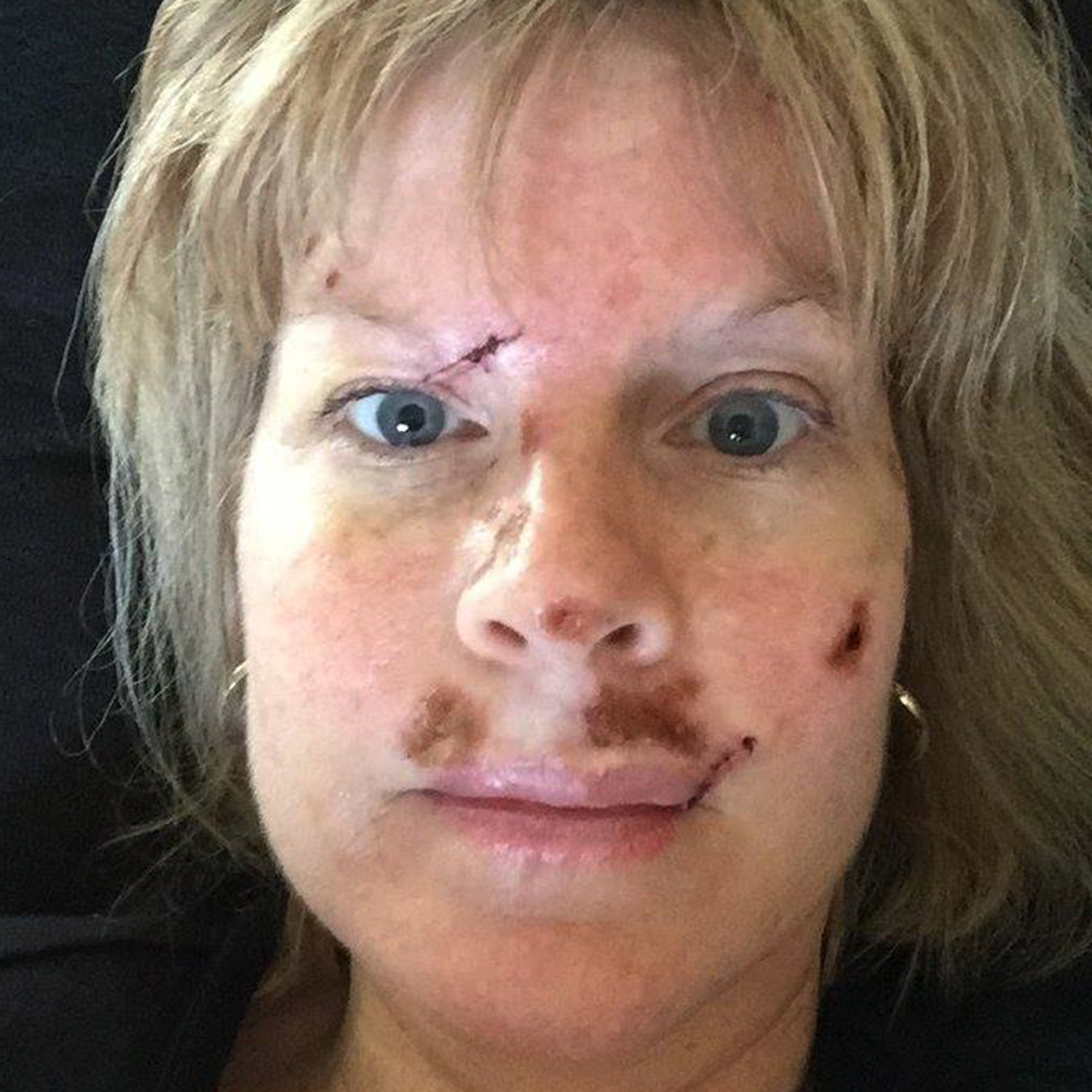 How To Prevent Skin Cancer Woman Has 40 Spots Removed Over 25 Years After Tanning