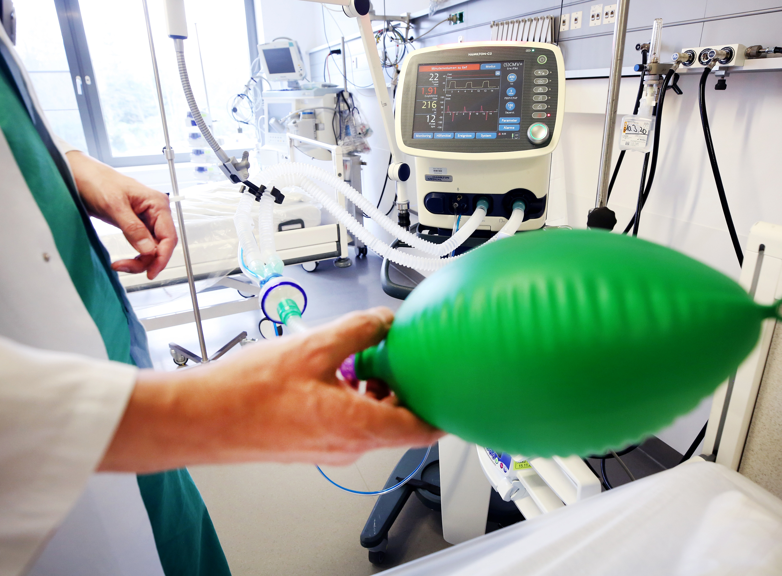 What is a ventilator? The 'critical resource' that is in short supply