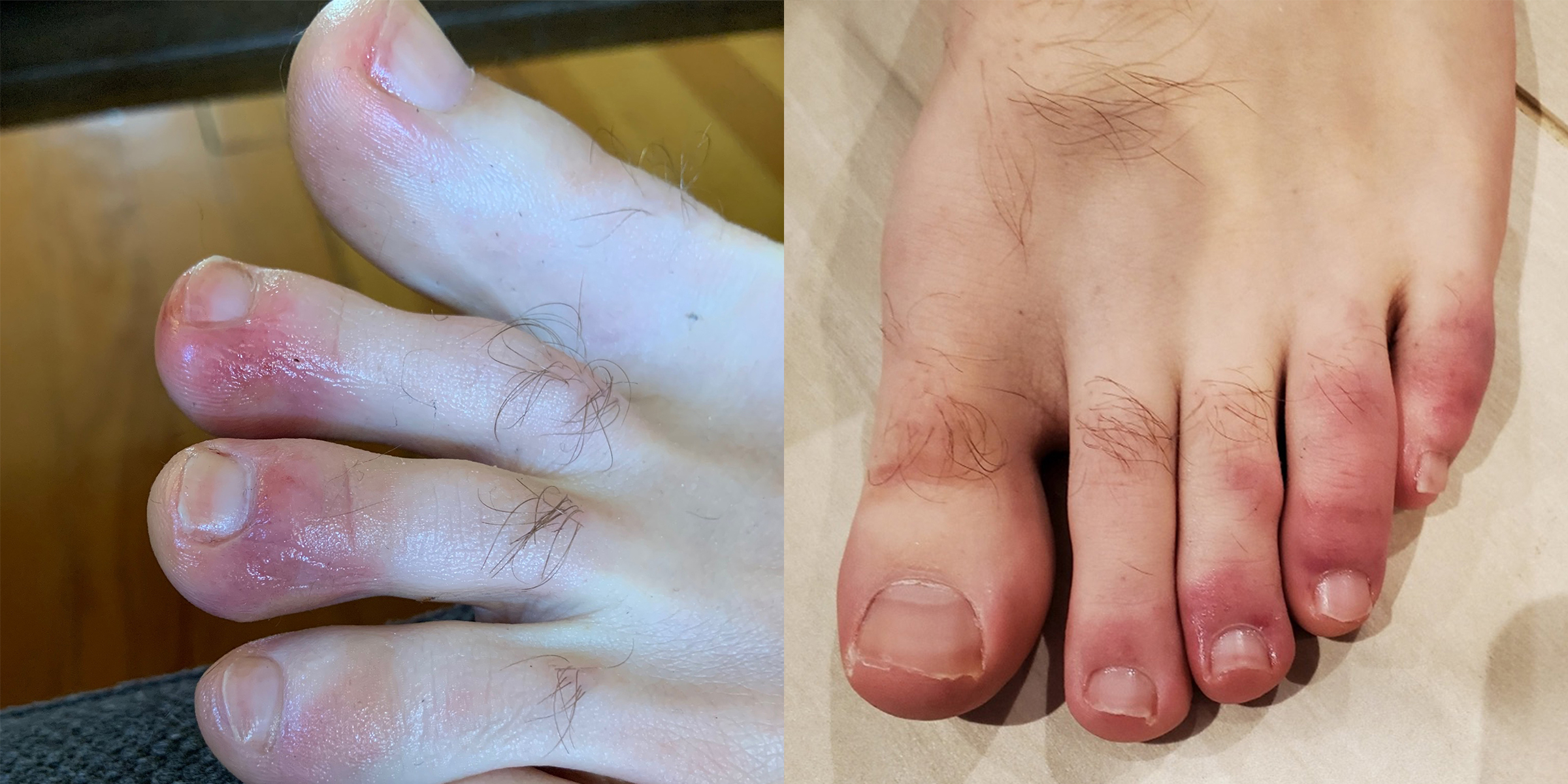 Covid Toes: Dermatologists and podiatrists explain Covid-19 toes