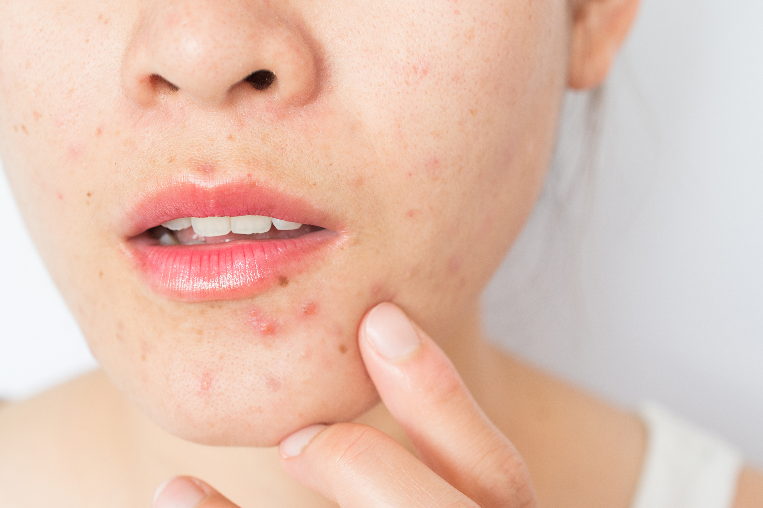 Skin Disorders Pictures Symptoms Causes And Help Today