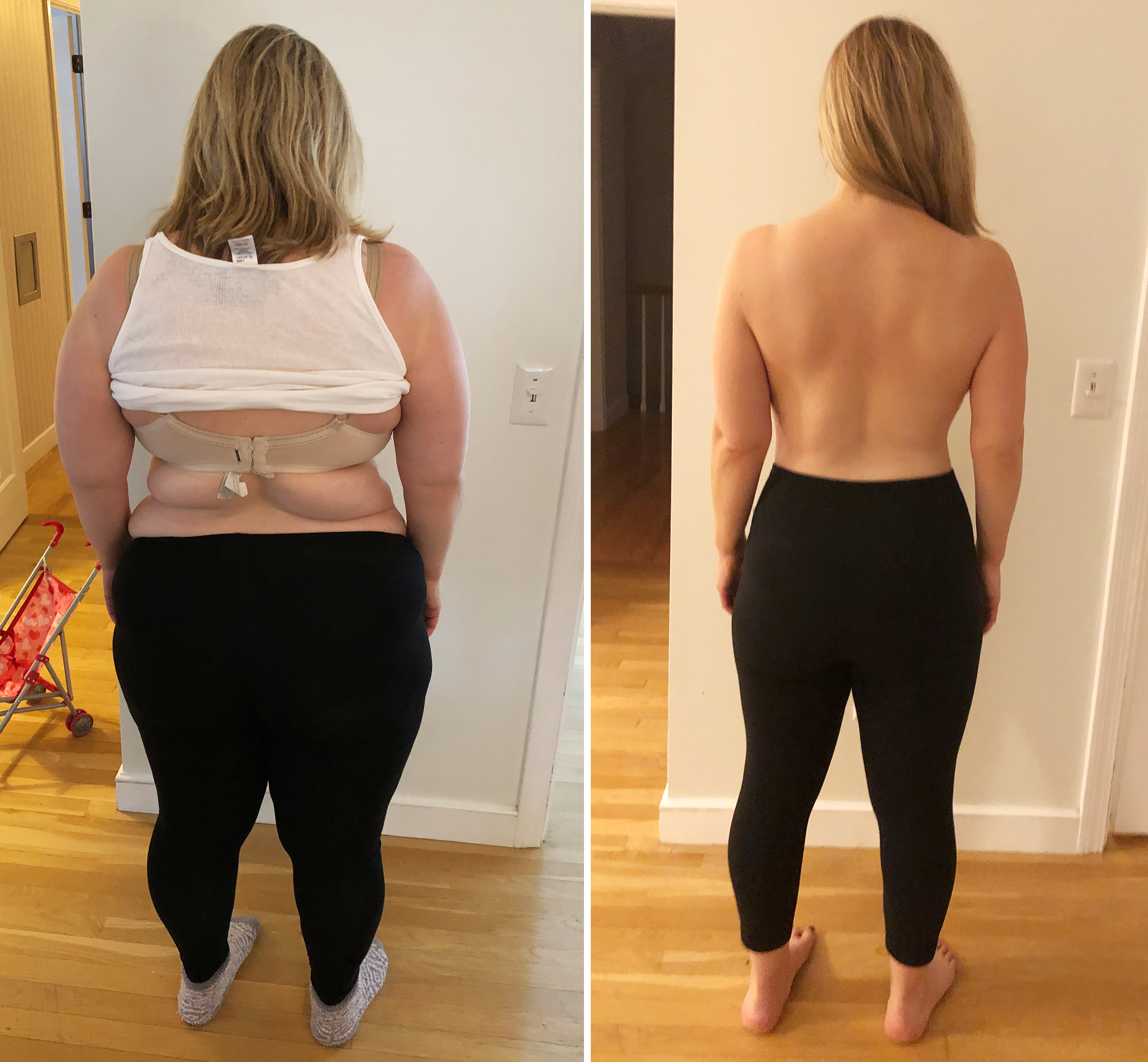Weight loss surgery Woman discusses vertical sleeve gastrectomy