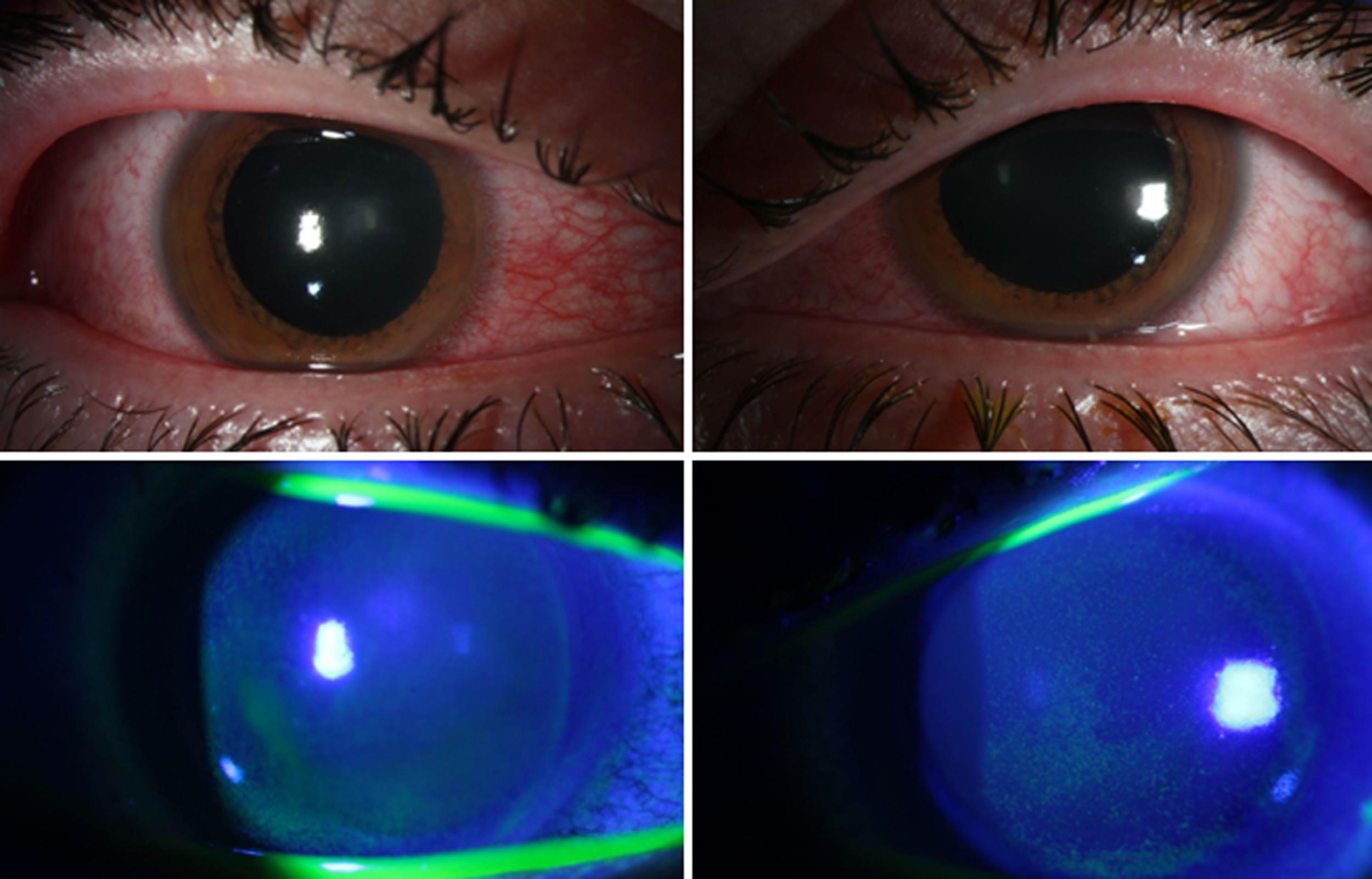 Doctors warn about eye damage from UV lights to kill the coronavirus thumbnail