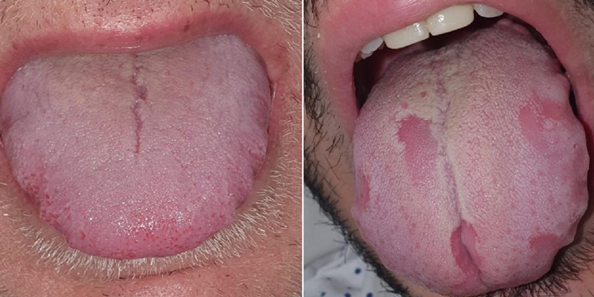 Bubble under tongue
