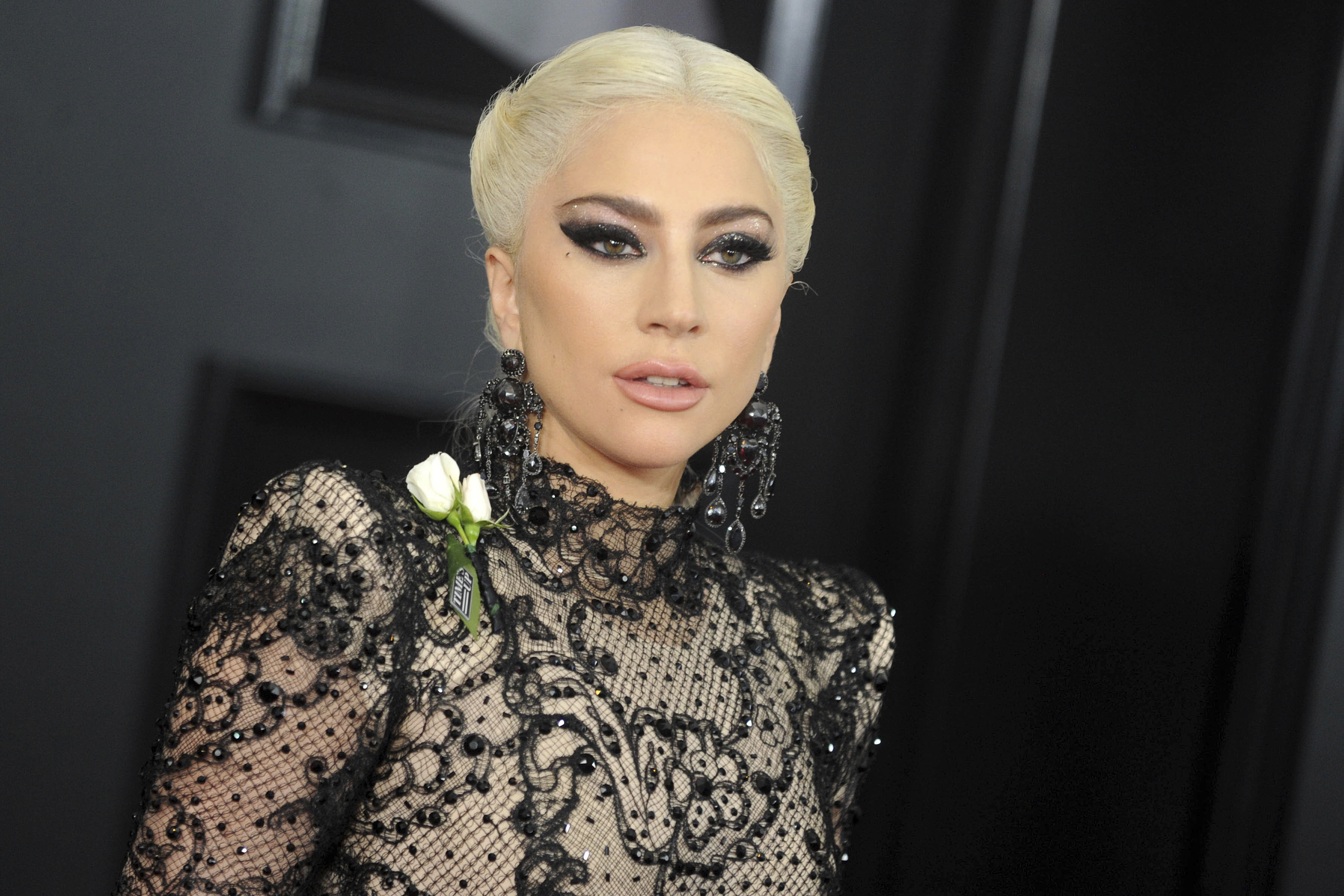 'Growing from trauma': Man shot while walking Lady Gaga's dogs appeals for help online