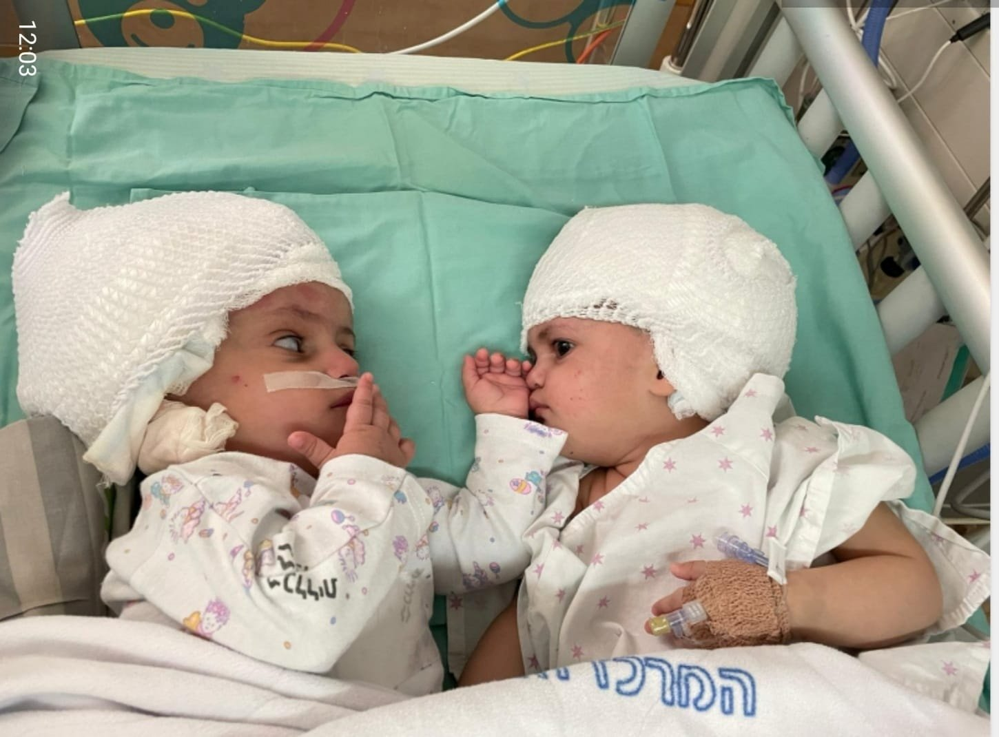 Separated conjoined year-old twins see each other for the first time