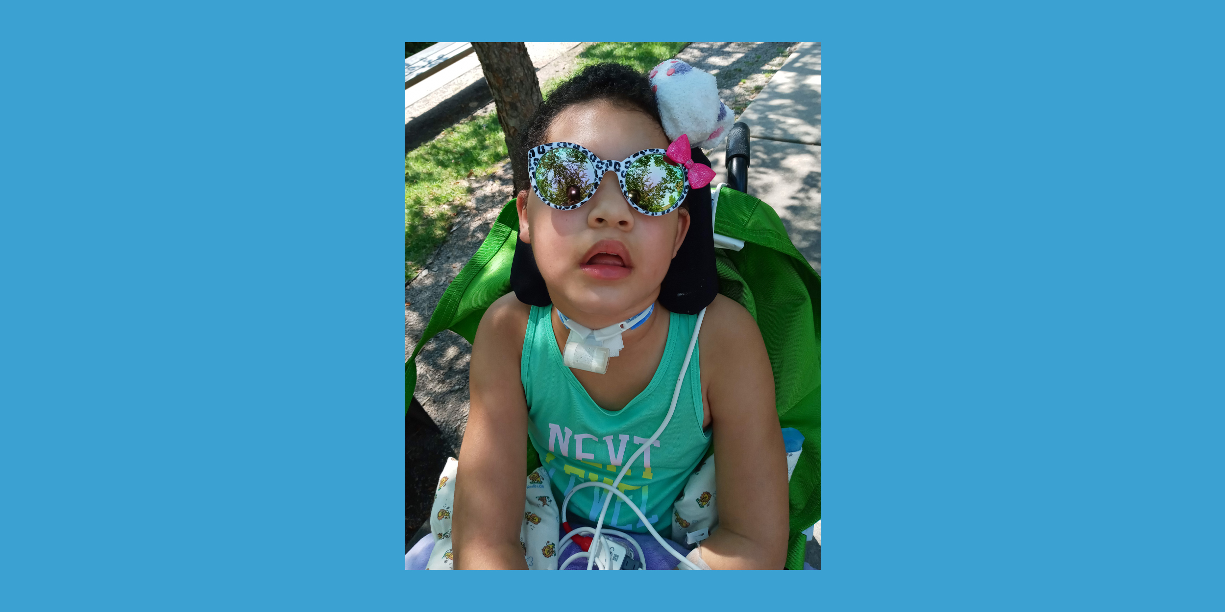 Covid likely led to a rare disorder that left 8-year-old girl paralyzed