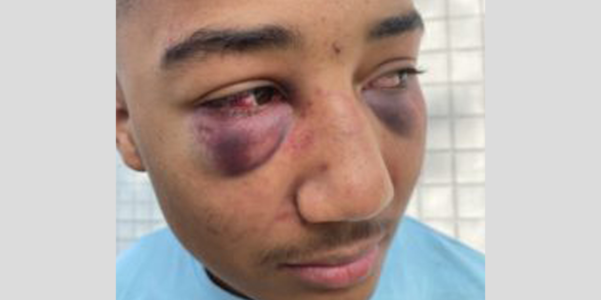 Former California officers indicted for allegedly beating Black teen