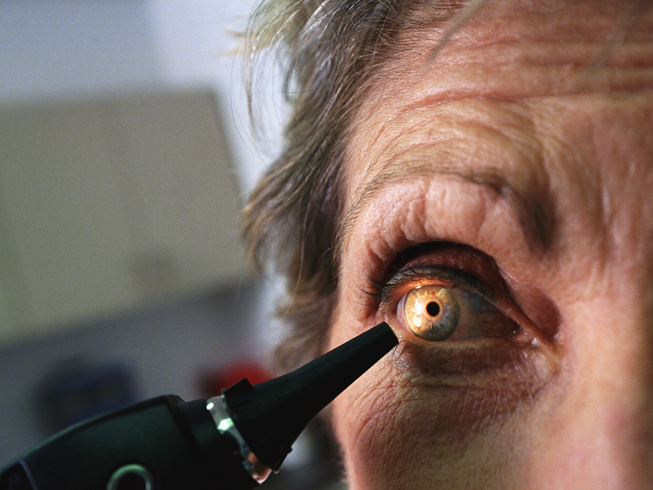 The Eye Condition 70 Of Adults Have Without Knowing The Eye Condition 70 Of Adults Have Without Knowing new photo
