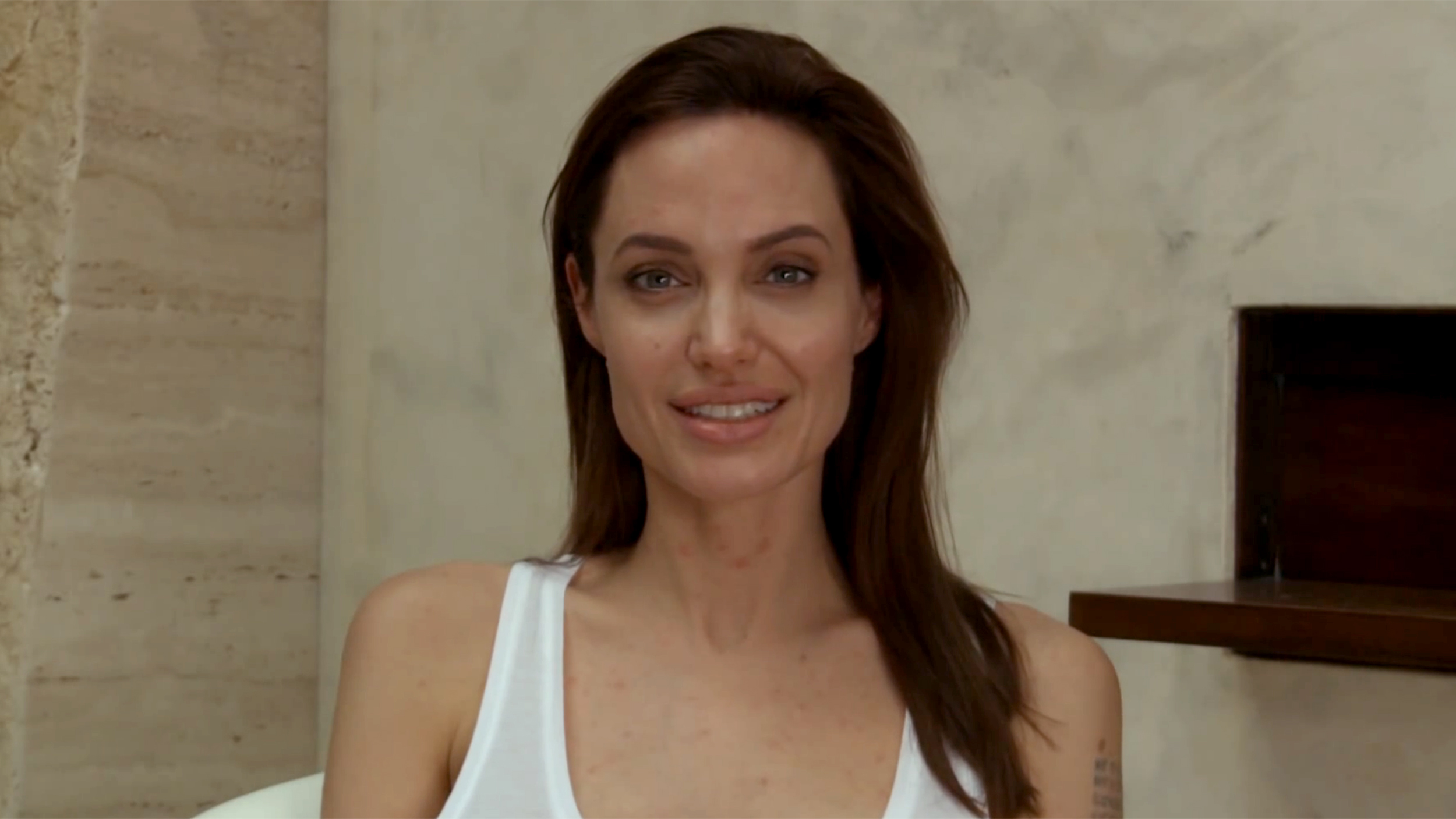 Angelina Jolie Has Chickenpox And It S No Joke Today Com