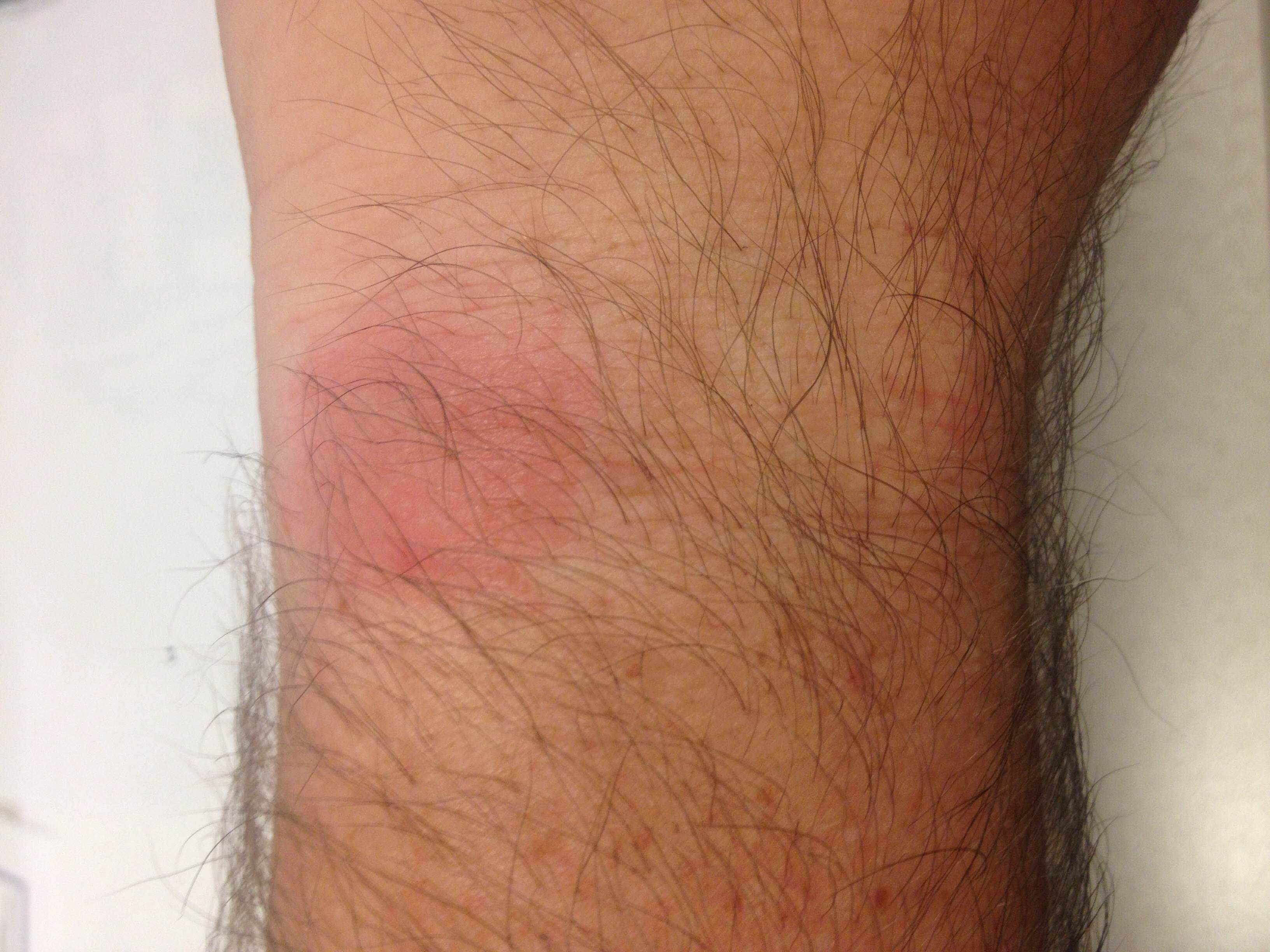Fitbit rash