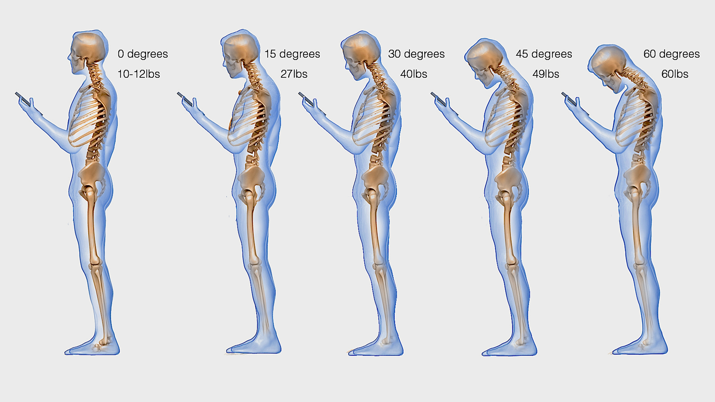 Texting neck: How hunching over your smartphone stresses ...