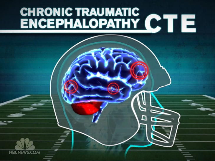 Breakthrough in diagnosing traumatic brain injury - Video on NBCNews ...