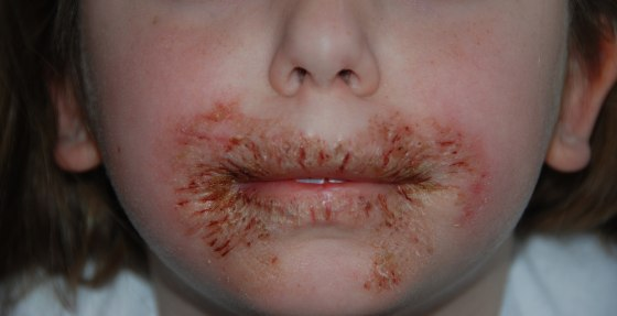 rash caused by baby wipes
