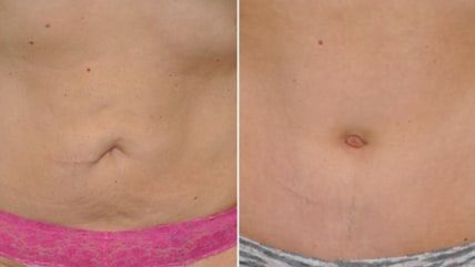 Before and after belly button surgery