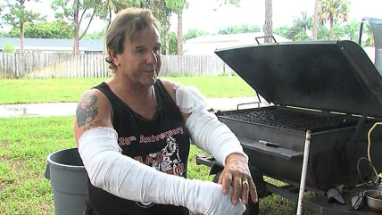 Byron Fuchs suffered second-degree burns in a propane gas grill explosion.