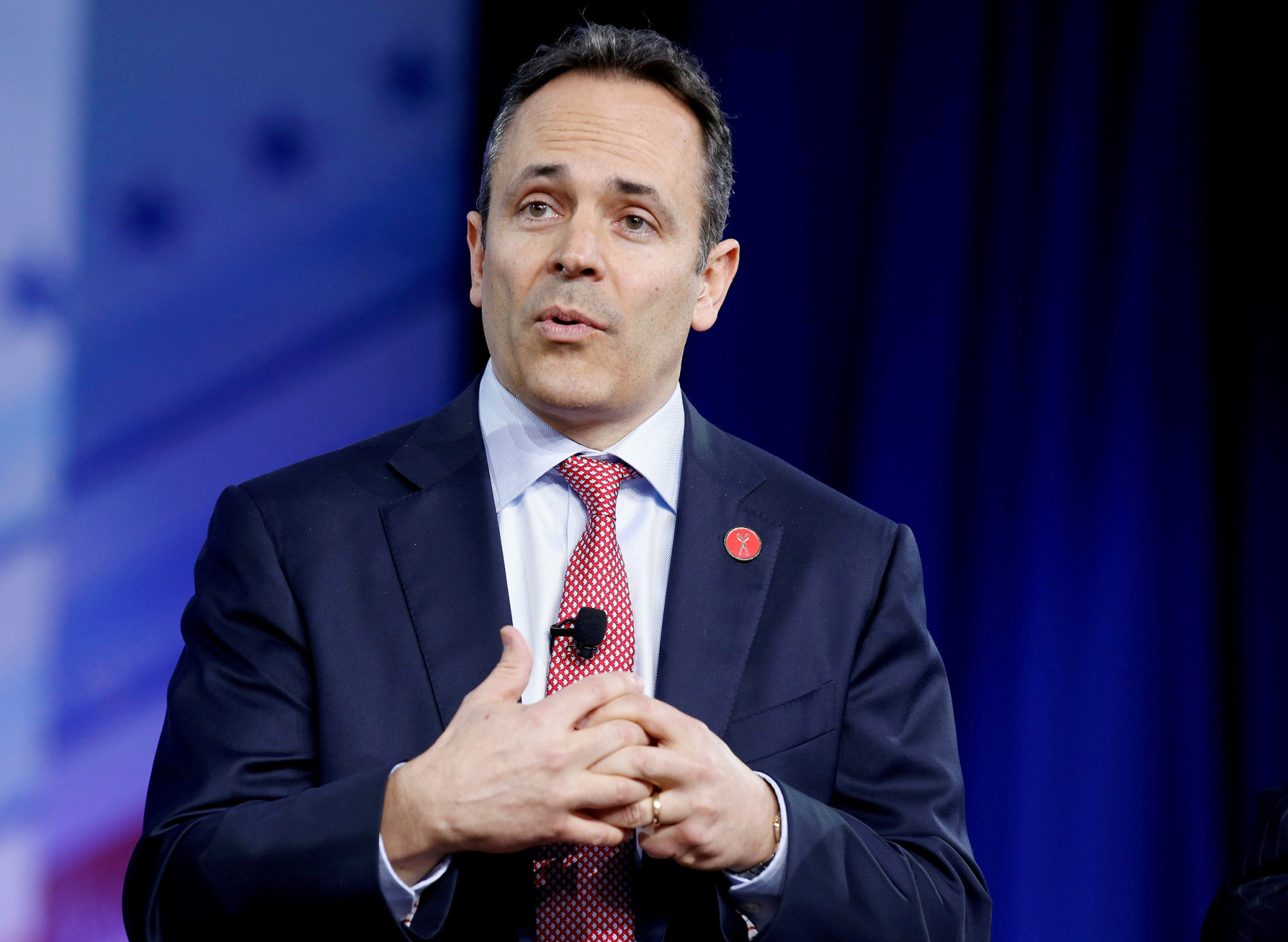 Doctors: KY Governor is wrong about chickenpox on purpose