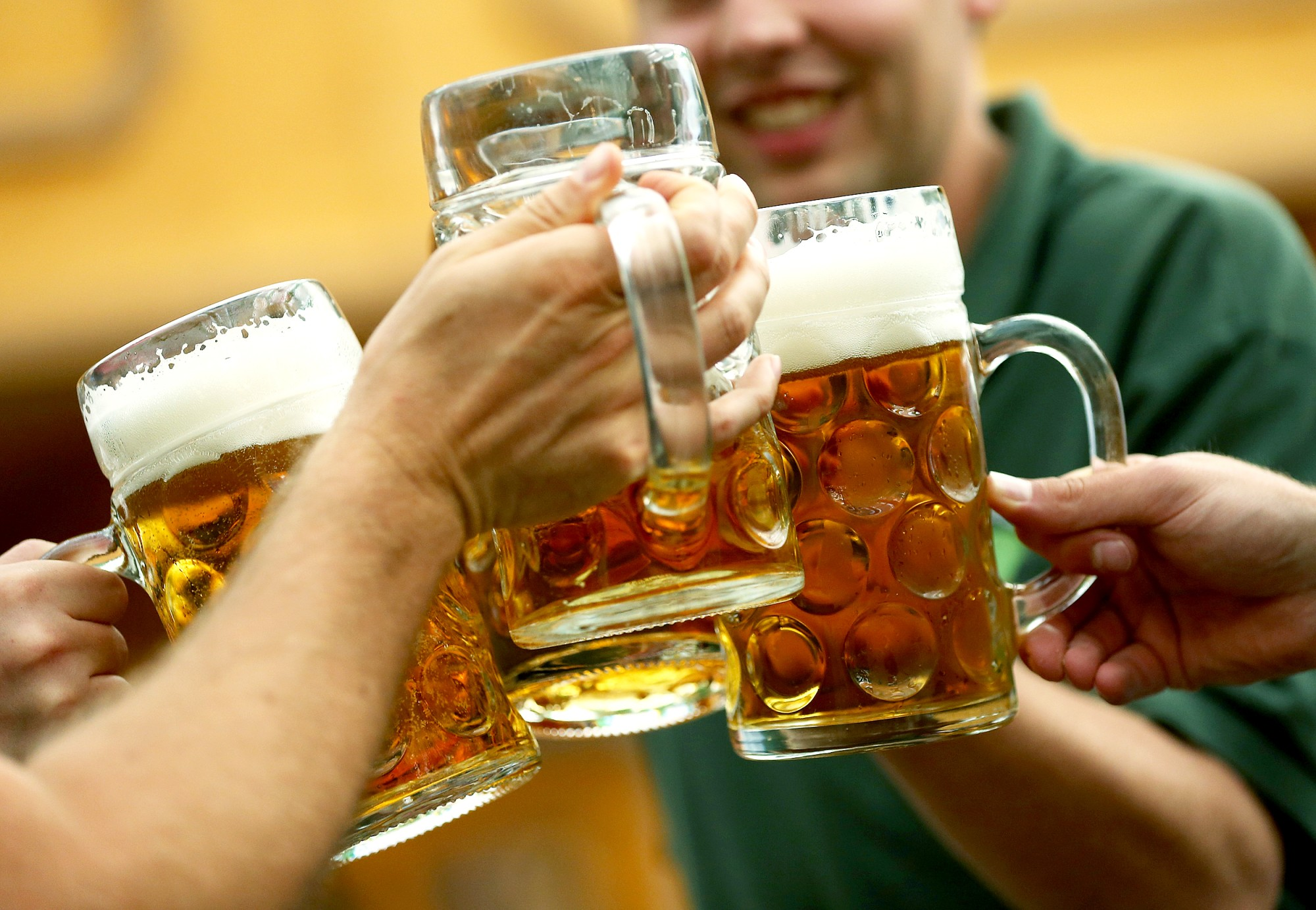 Severe alcohol-related liver disease on the rise